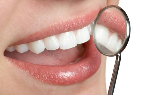 Cum sa avem dintii albi si stralucitori