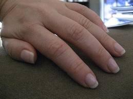 Forma unghiilor in functie de aspectul degetelor